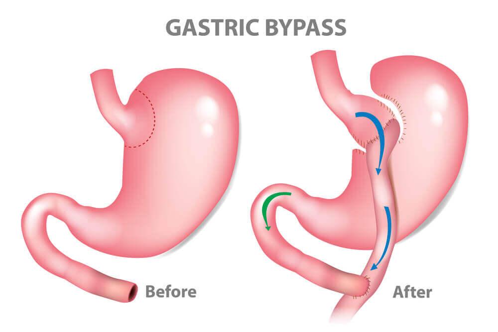 Gastrik bypass nedir?